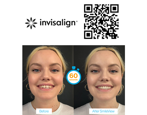 SmileView Experience